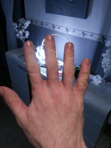 Hand 2 - (Allergie, Ekzem, Hausstauballergie)