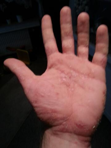 Hand 3 - (Allergie, Ekzem, Hausstauballergie)