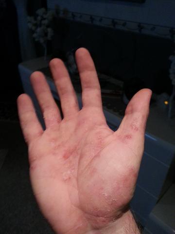 Hand 4 - (Allergie, Ekzem, Hausstauballergie)