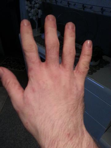 Hand 5 - (Allergie, Ekzem, Hausstauballergie)