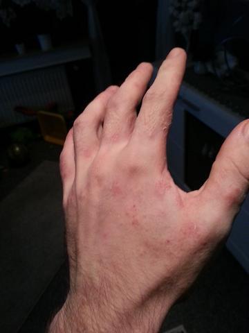 Hand 6 - (Allergie, Ekzem, Hausstauballergie)