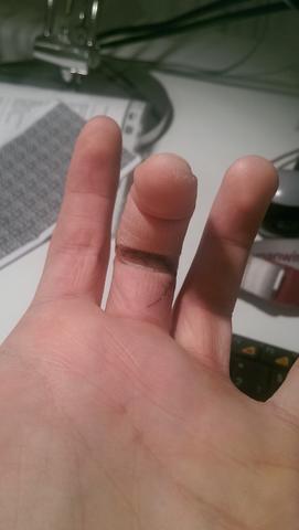 Elektrische Schmerzen bei gestreckter Hand im Finger nach Operation am Nerv. Ist das normal?