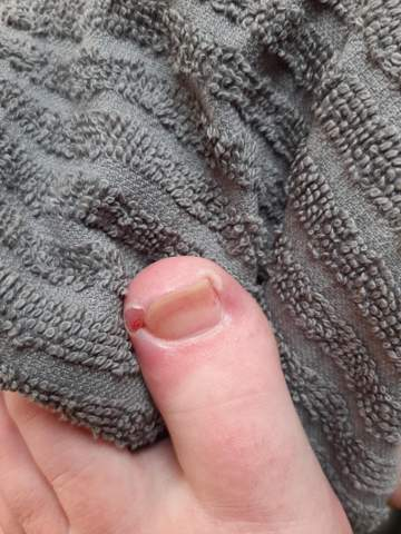 Entzündung am Zeh und starke Schmerzen?