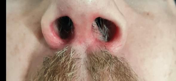 Entzündung Nase?