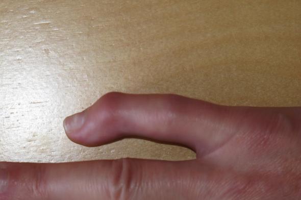 Erneute Op Bei Fehlerhafter Verheilung Fraktur Kleiner Finger