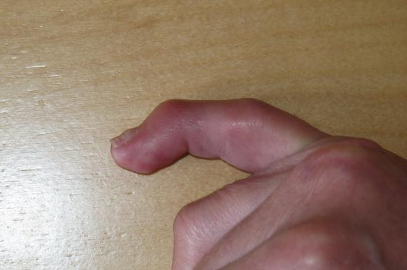 seitlich - (Orthopäde, Sprunggelenk, Sportverletzung)