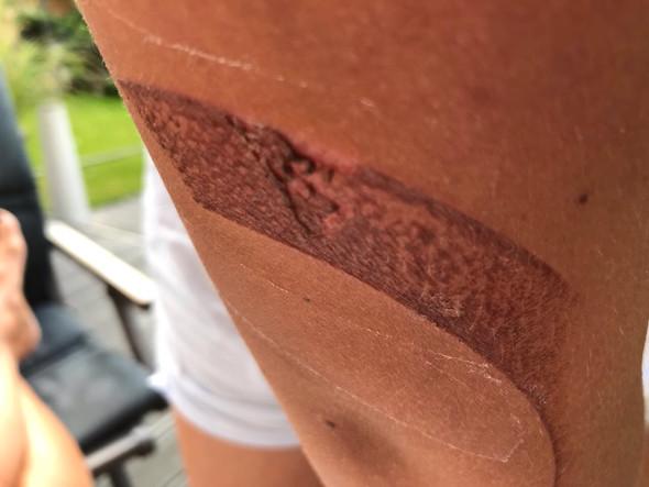 1 Tag nach Unfall - (Haut, Behandlung, Wunde)