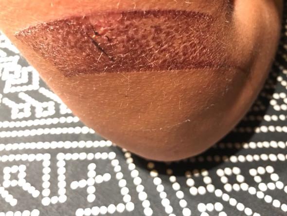 3 Tage nach Unfall - (Haut, Behandlung, Wunde)
