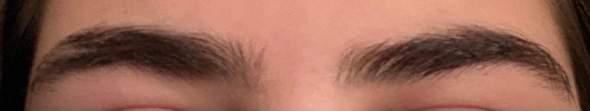 Extrem asymmetrische Augenbrauen?