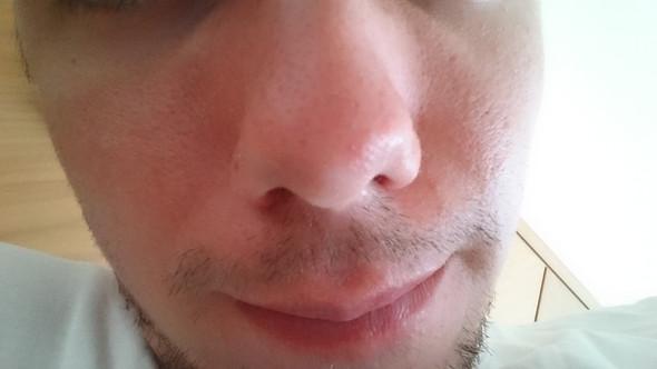 H1 - (Dermatologie, hautarzt, trockene Haut)