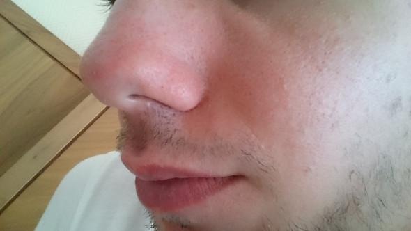 H2 - (Dermatologie, hautarzt, trockene Haut)