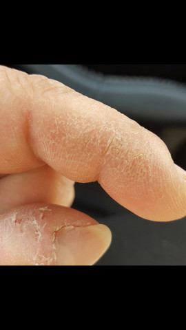 Extreme Hornhaut an Finger (Kuppen)?