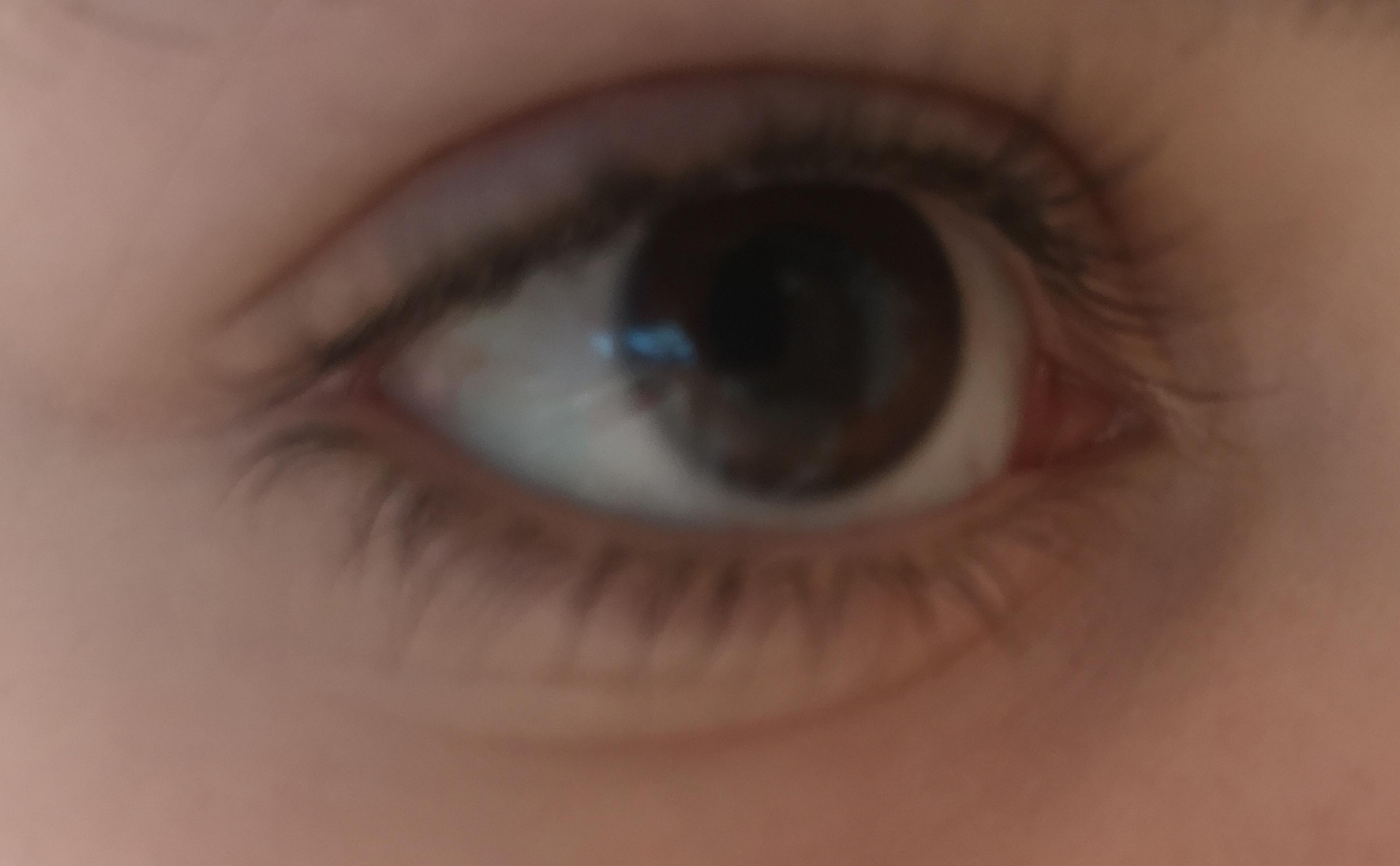 Falten Am Auge