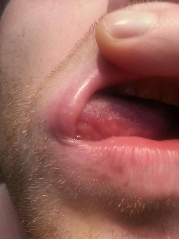 rechter mundwinkel abgebilde, ist aber an der ganzen oberen lippe - (Haut, Dermatologie, Urologe)