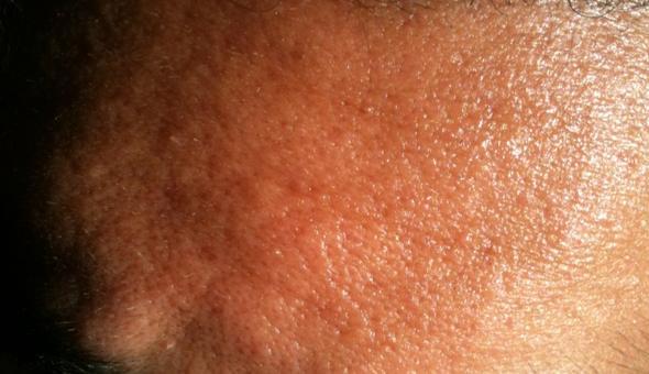 Stirn - (Haut, Gesicht, Hautpflege)