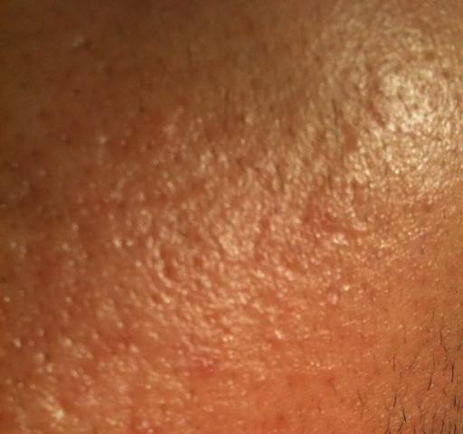 Wange - (Haut, Gesicht, Hautpflege)