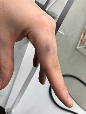 Finger auf Arbeit gequetscht- was tun?
