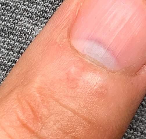 Finger eingeklemmt blau?