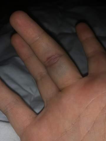 Finger gebrochen?