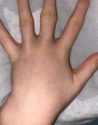 Finger knacken/ Krumme Finger?