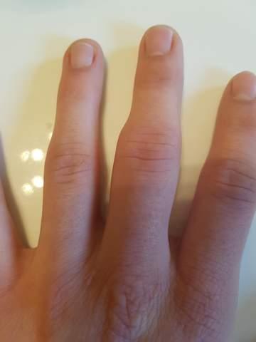 Finger mittelgelenk welche verletzung und soll ich zum artzt?