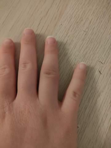 Finger verstaucht?