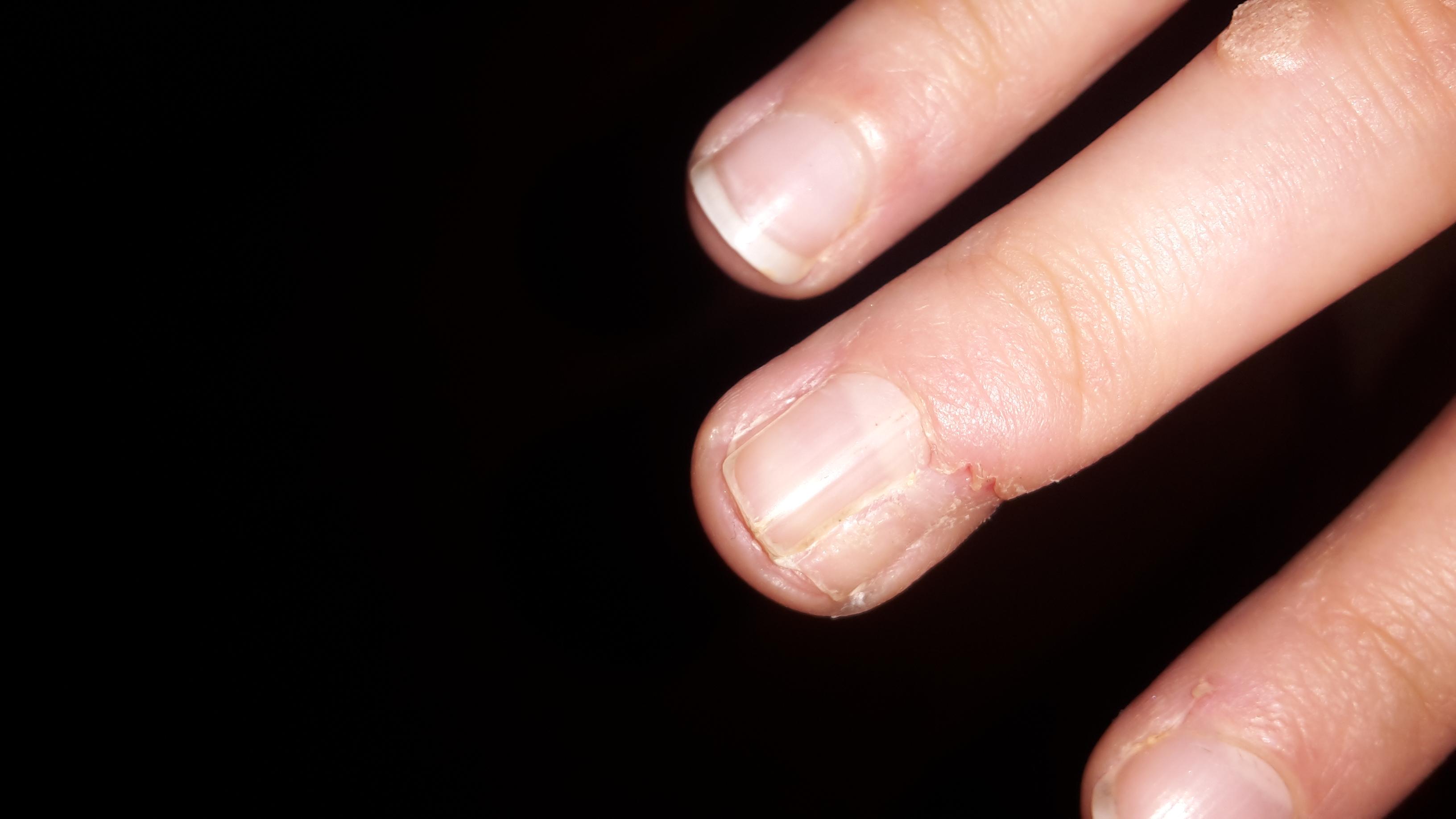 Fingernagel gespalten, Nagel entfernen? (Operation, Arzt, Verletzung)