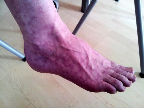 Flecken auf den Beinen Bsp 1 - (Haut, Füße, Flecken)