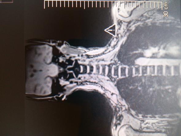 Frage zu MRI Bild