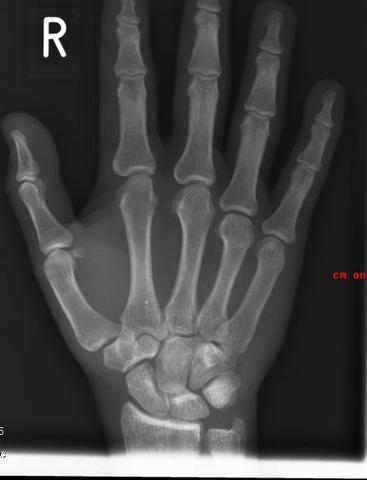 Hand - (Bruch, Röntgen, Fraktur)