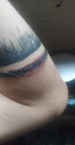 Frisches Tattoo Zwei Wochen alt juckt und Pusteln an manche Stellen?
