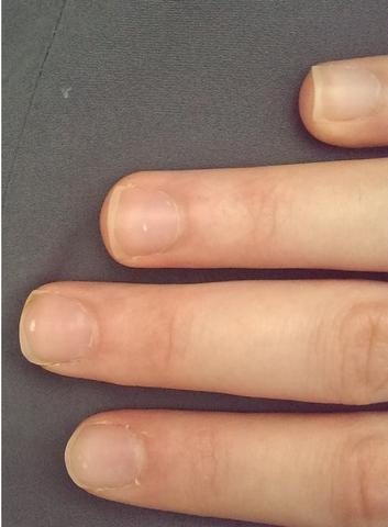 Nagel löst sich von der Nagelplatte - Bild 1 - (Zeh, Fingernägel, nägel)