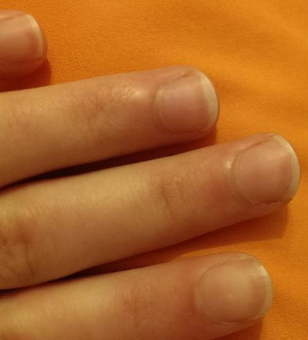 Ungleicher Nagelrand, trotz feilen - (Zeh, Fingernägel, nägel)