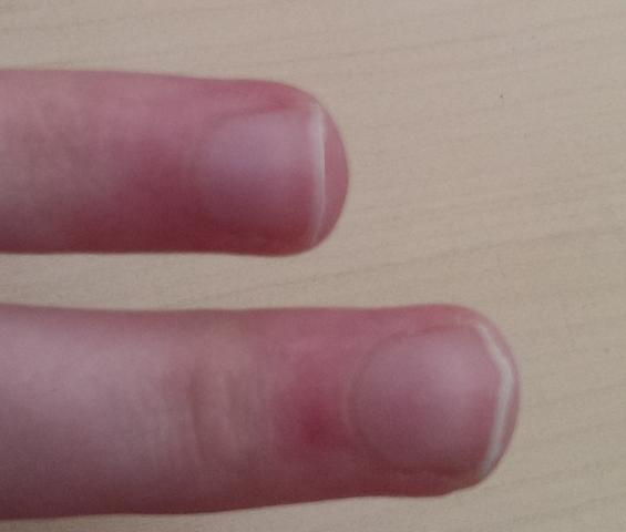 Hohlraum mitweggefeilt (Mittel- und Ringfinger) - (Zeh, Fingernägel, nägel)