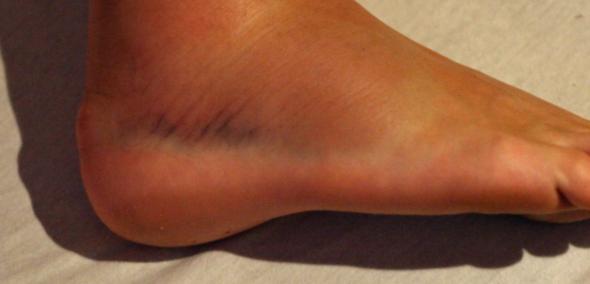 Bluterguss  - (Füße, kaputt)