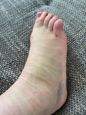 Fuß nur geprellt?