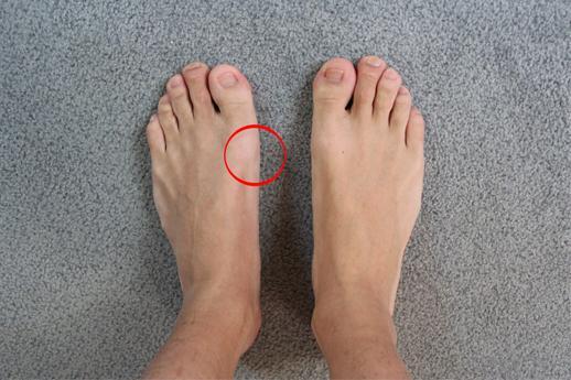Fußfehlstellung - Kritisch? (Mit Fotos)