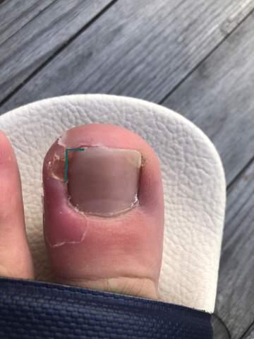 Fußnagel eingewachsen?