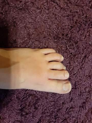 Fußpilz?