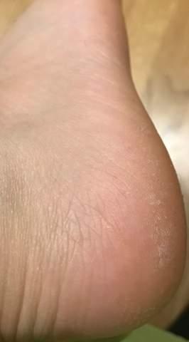 Fußsohle - Fußpilz?