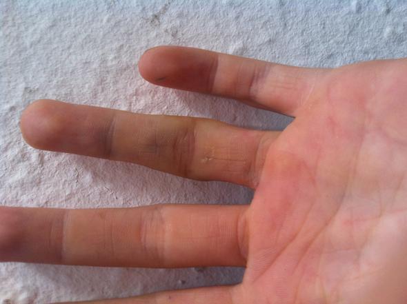 Blau ? - (Schmerzen, Finger)