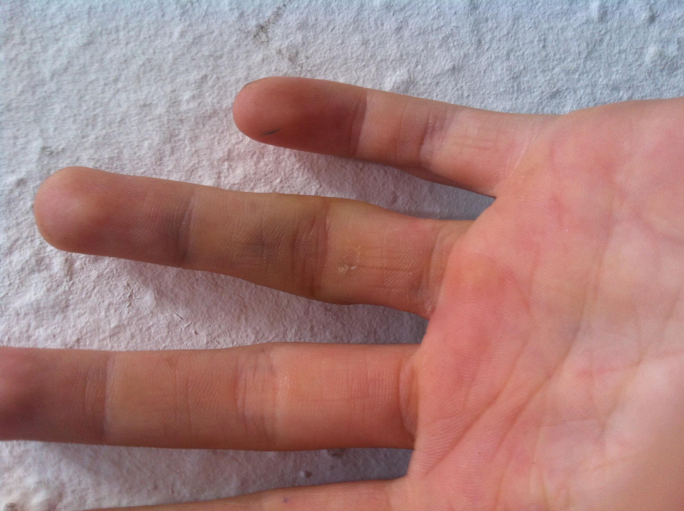 Ring finger verstaucht oder gebrochen
