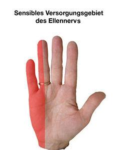 Betroffener Bereich - (Hand, Nerven, Taubheitsgefühl)
