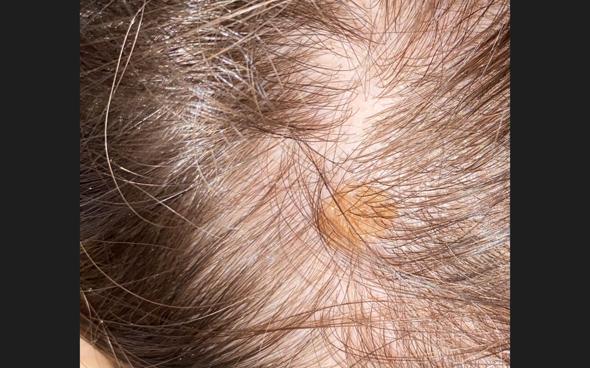 gelb orangener Fleck auf Kopfhaut?