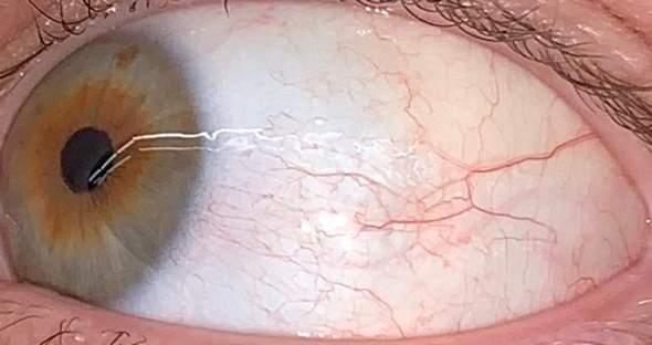 Gelbe Augen / Sklerenikterus?