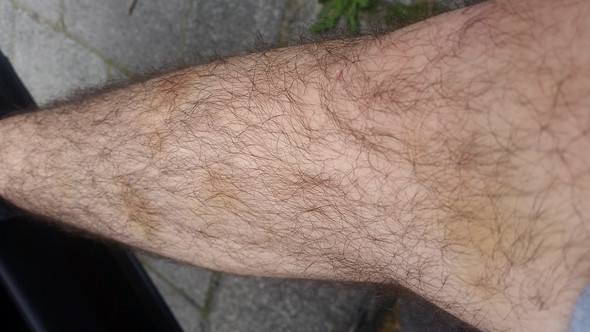 Mehrere Flecken  - (Beine, Flecken, gelbe Flecken)
