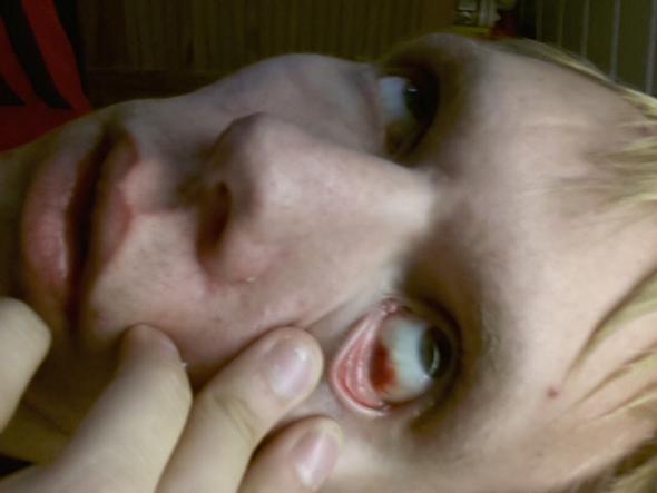 Bild - (Augen, Erkältung, Adern)