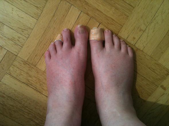 Gerötete Füße mit Ausschlag - was ist das und was soll ich