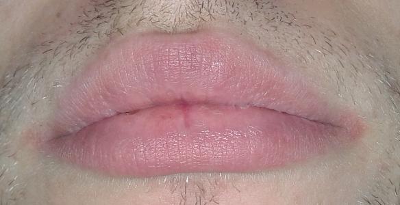 Bild 1 - (Entzündung, Mund, Rötung)
