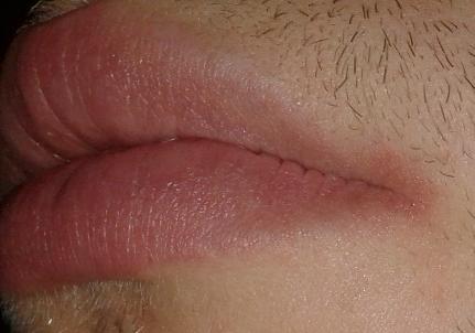 Bild 2 - (Entzündung, Mund, Rötung)